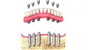 Implanted Dentures 1